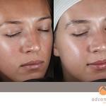 Before & After 5 eMatrix Treatments