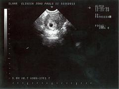 cp_ultrasom1