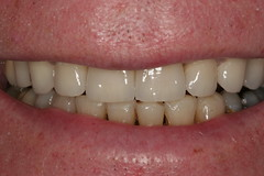 Charlotte cosmetic dentist shows crowns-after