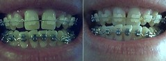 compare smile adj 1 wk 0 and 4