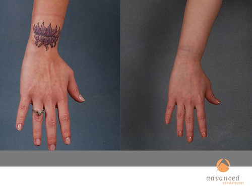 Laser tattoo removal in chicago il advanced dermatology for Laser tattoo removal chicago