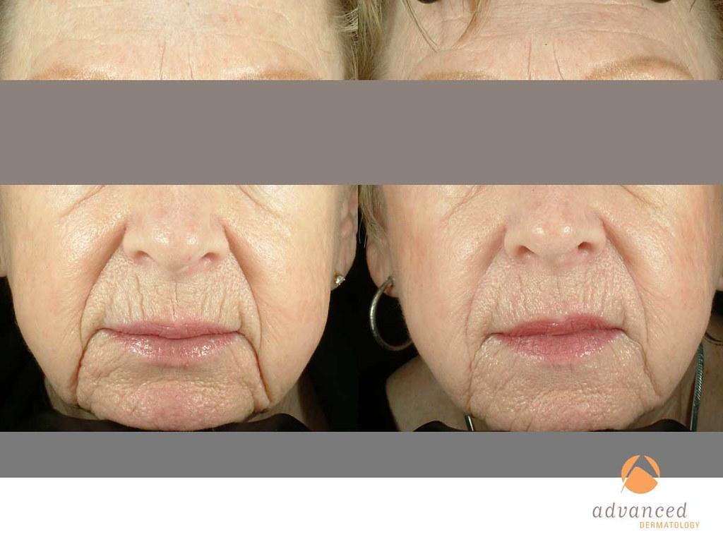 Titan™ | Advanced Dermatology