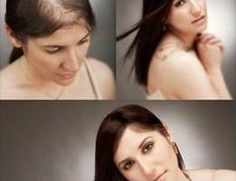 Hair Lost