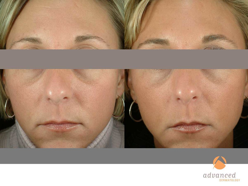 Titan™ | Advanced Dermatology