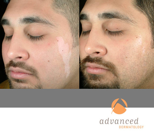 The excimer laser, best know for its use in eye surgery is now being used to treat psoriasis 2