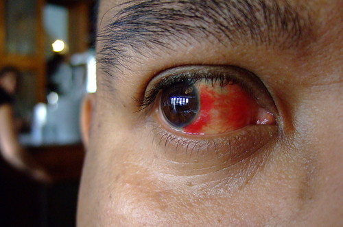 Bloody Eye 06