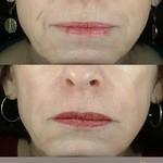 Liquid Facelift, Lower Face