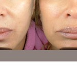 Before & After Restylane® & Perlane®