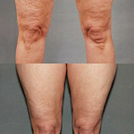 TriPollar Apollo Thighs - Before and after 6 treatments.