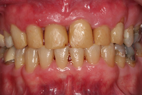 Charlotte cosmetic crowns-before