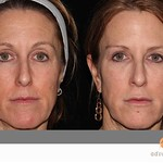 Before & After Restylane®, Perlane® & Dysport®