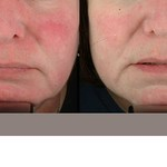 Before & After 5 Photorejuvenation Treatments