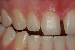 Charlotte cosmetic dentist shows bonding-before
