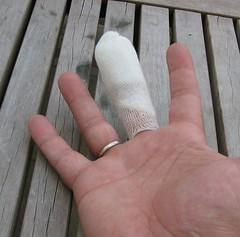 Hand kaputt