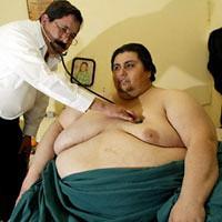 El hombre mas gordo del mundo será operado para reducir su peso